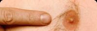 man-nipple